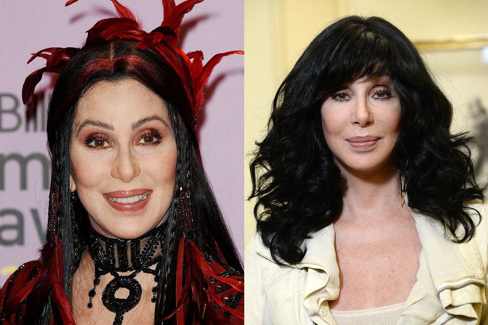 La cantante Cher ha confesado haber pasado por quirófano más de 20 veces