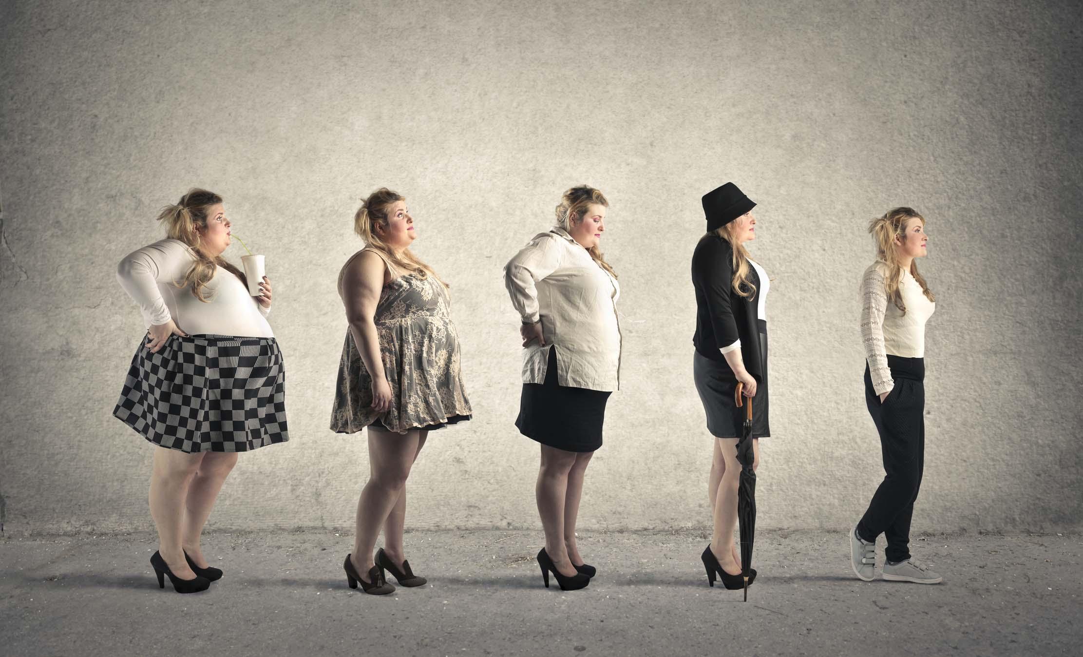 cirugía de pérdida de peso